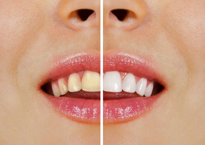 teeth before and after whitening