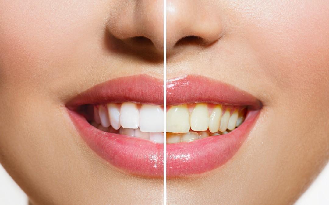 Whiten Teeth at the Dentist